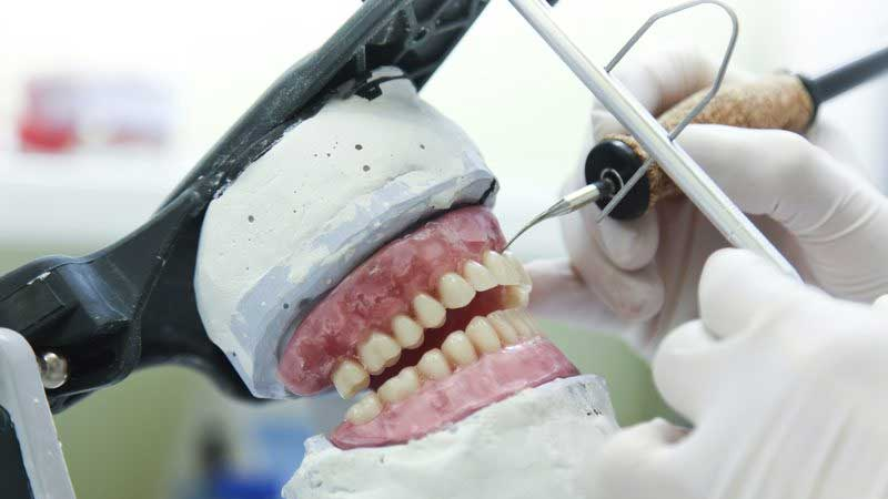 Dental technicians & Medical Device Regulation